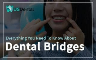 Everything You Need To Know About Dental Bridges Featured Image