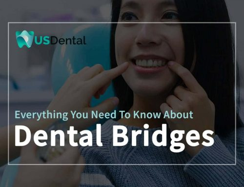 Everything You Need To Know About Dental Bridges
