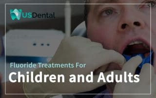 Fluoride Treatments For Children And Adults Featured Image
