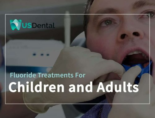 Fluoride Treatments For Children and Adults